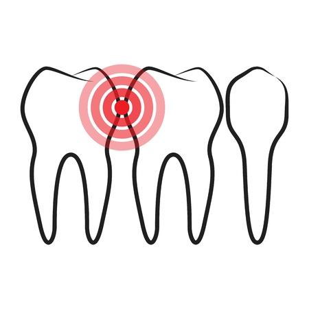 Toothache Stock Vector - 16886248