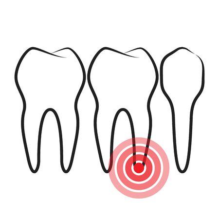 pulsation: Toothache