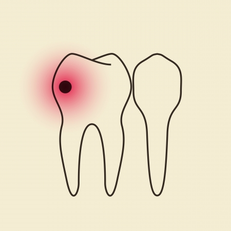 caries dental: Dolor de muelas
