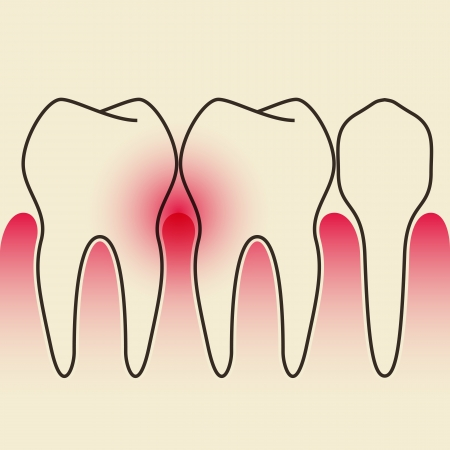 gum: Periodontal Disease