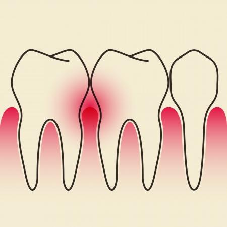 gums: Periodontal Disease