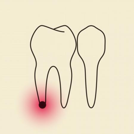 pulpitis: Toothache - Pulpitis Illustration