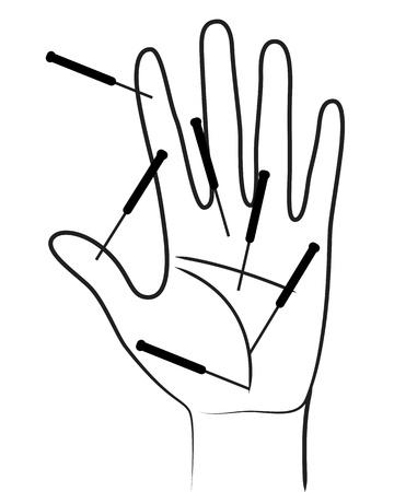 acupuntura china: Acupunctured mano sobre fondo blanco