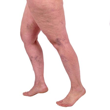 Female legs with varicose veins and leg spiders. The concept of human health and illness. White background. Vascular diseases, problems of varicose veins.