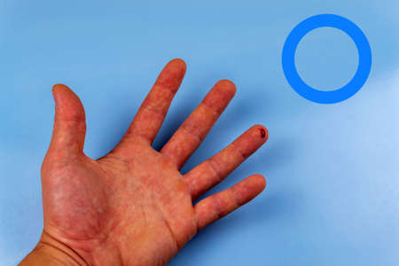 Male hand with a drop of blood on a finger and a sign of diabetes. World Diabetes Day