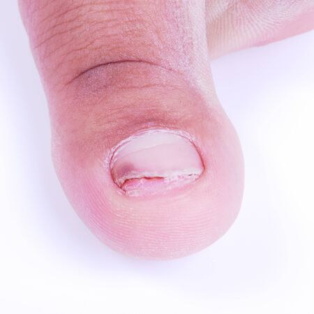 toenail fungus: Ingrown nail caused by improper cleaning and cut nails.