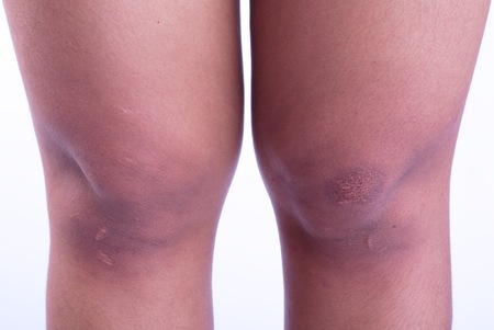 scars: Scars caused by accidents on the womans legs. Stock Photo