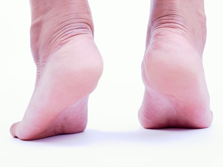 foot fungus: The smooth surface of the heel of a woman with no cracks.