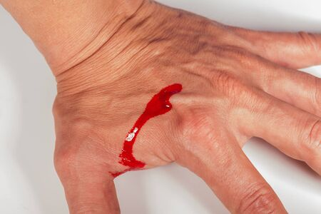 penetrating: Subcutaneous medical injection concept with a small hypodermic syringe filled with a red liquid penetrating the skin and producing a flow of dripping blood in a close up view