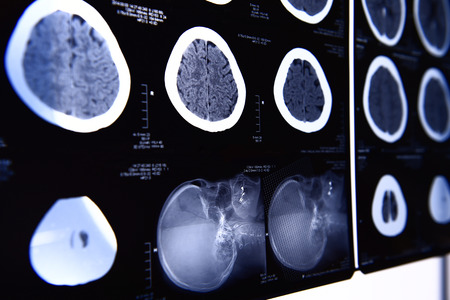 x ray image: images from a computerized tomography of the brain