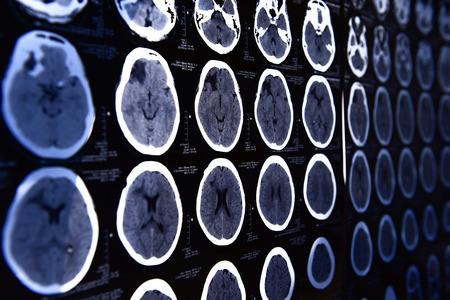 cerebro blanco y negro: im�genes de una tomograf�a computarizada del cerebro