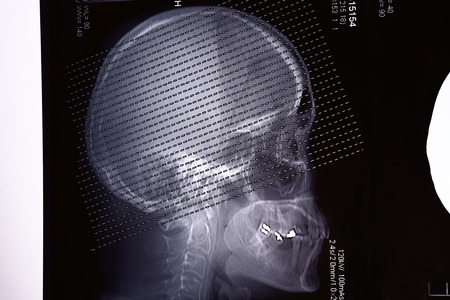 Profile view with a human skull X Ray on black background photo