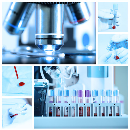 mix of blood test in a laboratory with blue filter Banco de Imagens