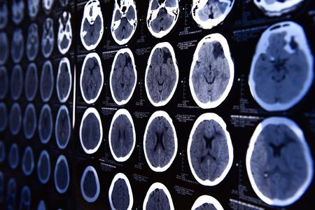 immagini da una tomografia computerizzata del cervello