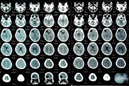 computerized: images from a computerized tomography of the brain
