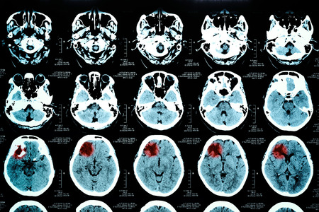 computerized: images from a computerized tomography of the brain take with art lighting and blue filter Stock Photo