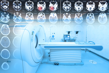 MRI scanner room with images from a computerized tomography of the brain take with art lighting and blue filter Stock fotó