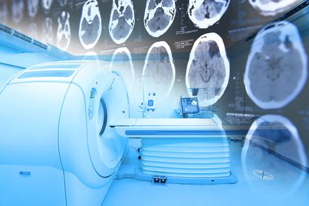 Sala scanner MRI con immagini da una tomografia computerizzata del cervello riprese con illuminazione artistica e filtro blu