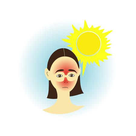 sunburn: Girl with skin sunburn