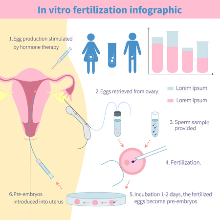 体外受精。研究室の卵の受精を示す詳細なインフォ グラフィック。
