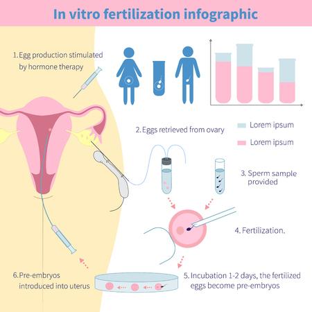 Reageerbuisbevruchting. Gedetailleerde infographic tonen laboratorium bevruchting van eieren. Vector Illustratie