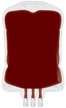 ドナー血漿および血のプラスチック コンテナーです。