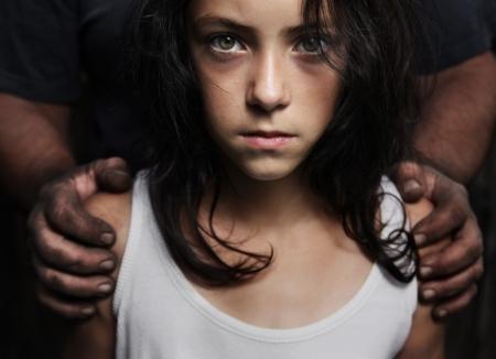 maltrato infantil: Manos sucias sobre los hombros de una chica s Foto de archivo