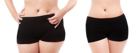 liposuction: Woman s body before and after a diet
