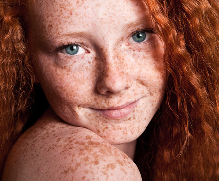 freckled: Cheerful freckled girl