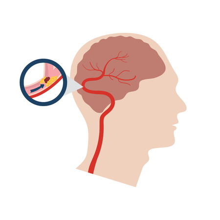 Ilustración de vector de un accidente cerebrovascular en un fondo blanco.