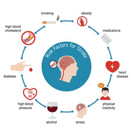 뇌졸중에 대한 인포 그래픽. 뇌졸중 위험 요인. 벡터 일러스트 레이 션.
