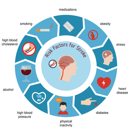 Infographics for stroke. Stroke risk factors. Vector illustration. 일러스트
