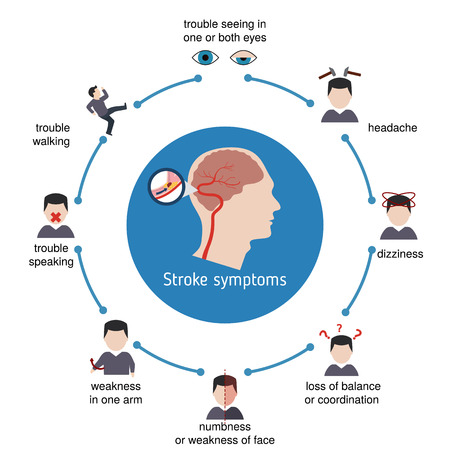 Infographics for stroke. Stroke symptoms. Vector illustration. Stock Vector - 87687324