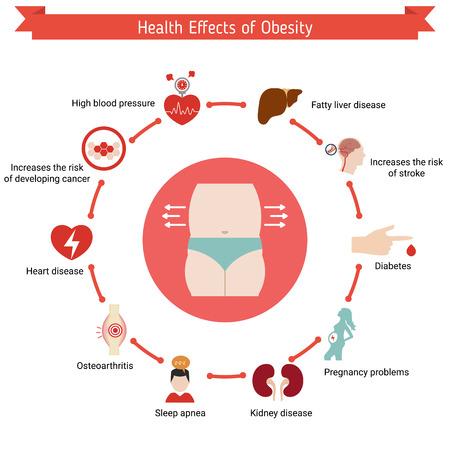 Gesundheit und Gesundheitswesen Infografik. Gesundheitliche Auswirkungen von Fettleibigkeit.