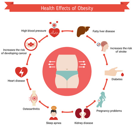heavy risk: Health and healthcare infographic. Health effects of obesity.