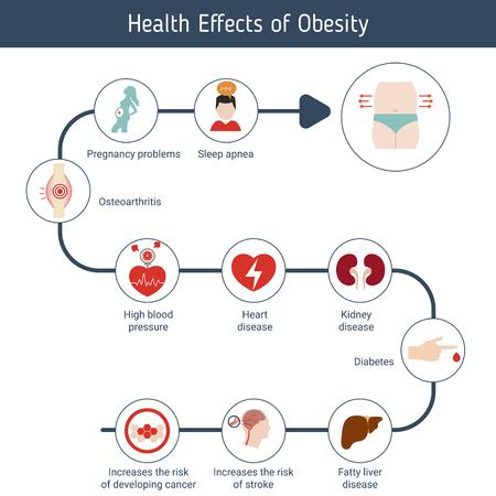 건강 및 의료 infographic. 비만의 건강 영향. 일러스트
