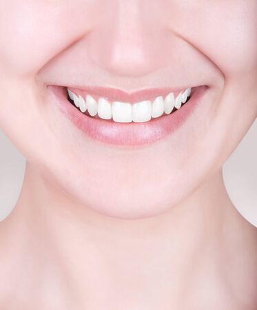 perfect teeth: Laughing woman with perfect teeth Stock Photo