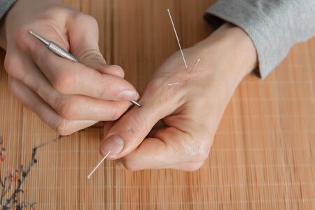 Man using acupuncture treatment for pain relief. Chinese alternative medicine
