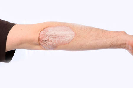 psoriasis: Psoriasis on the elbow, the arm is stretched out