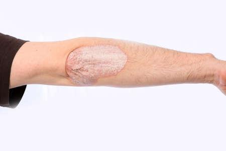 elleboog: Psoriasis op de elleboog, de arm is uitgestrekt