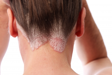 psoriasis: psoriasis on the hairline and on the scalp-close up Stock Photo