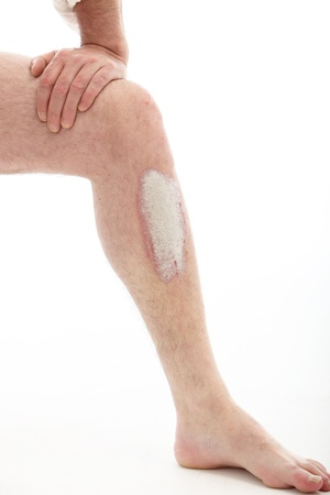 decisive: Psoriasis on the leg - close up on white background