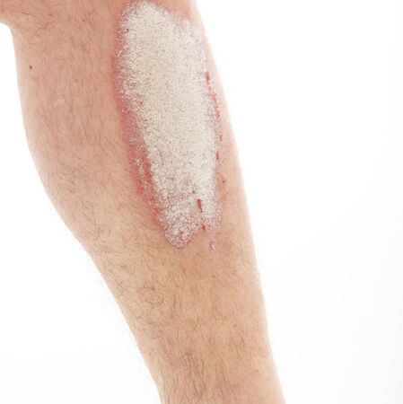 psoriasis: Psoriasis on lower legs - close up up on white background Stock Photo