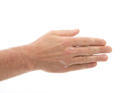 Psoriasis on the hands and under fingernails with Copy Space