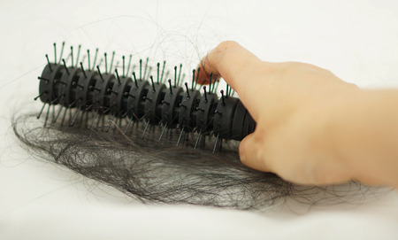 long depression: Women with hair loss problems, there are many hair attached to a comb after use. Stock Photo