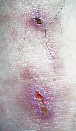 pus: Wound or skin damage at lower leg, surrounding skin redness, Stock Photo