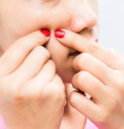 irritation: Squeezing pimple to clean the skin closeup