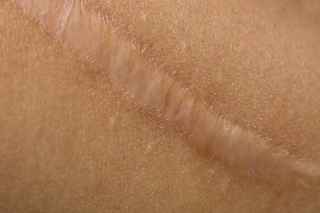 Keloid on skin Body closeup image