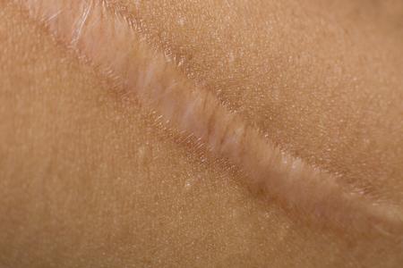 Keloid on skin Body closeup image