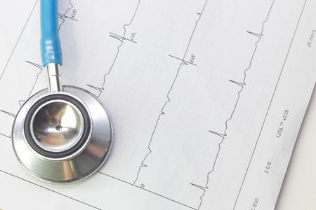 Ein blaues Stethoskop und Elektrokardiographie-Diagramm schließen herauf Bild.